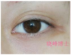 三眼皮修复案例--朱晓峰博士