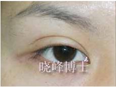 双眼皮修复案例:重睑线过宽