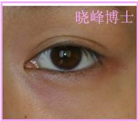 双眼皮修复案例:埋线双眼皮修复