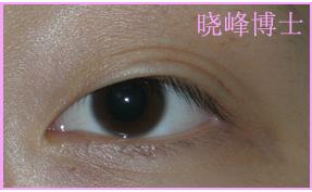 双眼皮修复案例:双眼皮手术失败