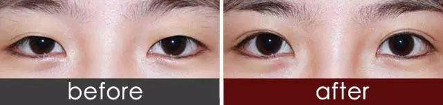 双眼皮消失修复