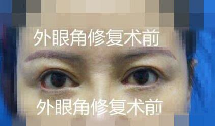 外眼角修复