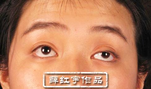 薛红宇眼部修复案例:上睑下垂矫正