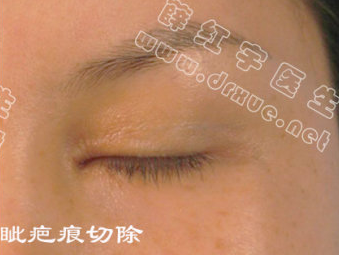 薛红宇双眼皮修复真实案例:内眦疤痕切除