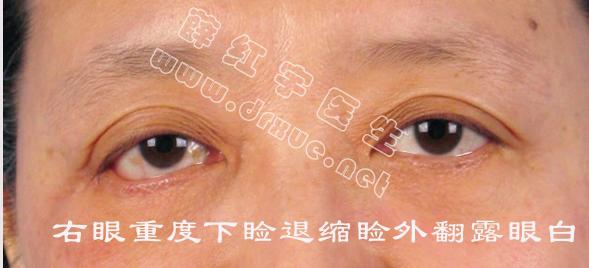 薛红宇眼袋修复案例:下睑退缩,下睑外翻