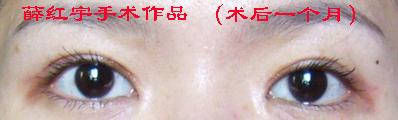 薛红宇双眼皮修复案例:内眦开大