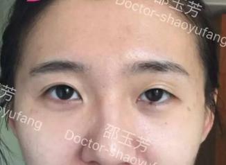 邵玉芳双眼皮修复案例:大小眼明显内眦赘皮