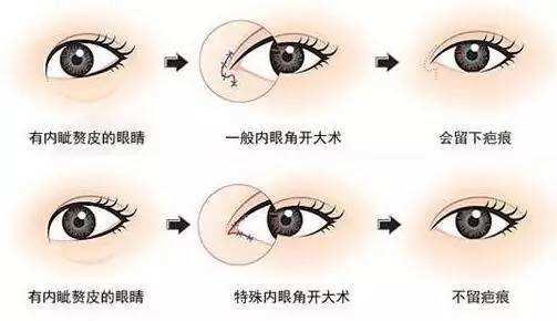 杭州双眼皮修复知名专家排行榜  杭州最好的双眼皮修复专家排名 杭州最好的双眼皮修复专家有哪些?