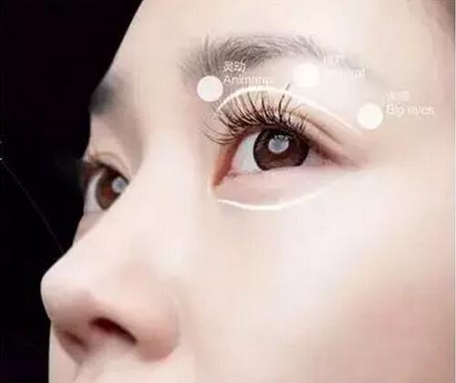 武汉修复双眼皮专家排行榜  武汉双眼皮修复最好的专家排名