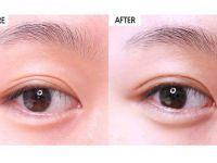 北京艾玛李方奇双眼皮修复技术怎么样?北京艾玛李方奇双眼皮修复案例