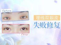 北京双眼皮修复整形专家王世勇和王振军谁更好?