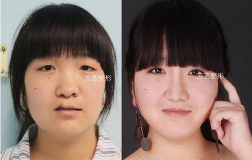 郑州割双眼皮的专家有哪些?郑州割双眼皮哪个医生性价比高?