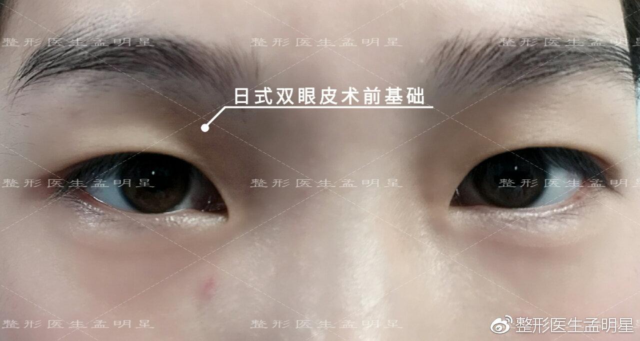 孟明星医生的日式无痕双眼皮是不是埋线双眼皮?