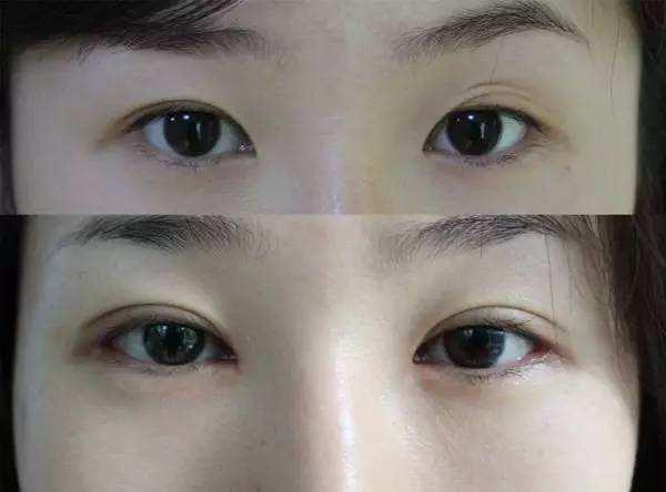 双眼皮修复专家刘风卓:刘风卓双眼皮修复案例和收费标准