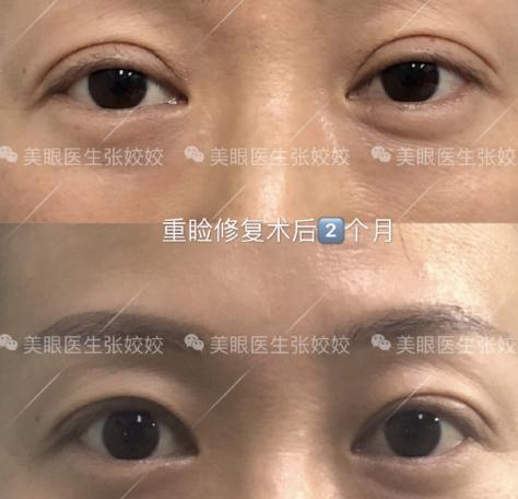 长沙双眼皮修复哪个医院比较好?长沙双眼皮修复的名医排名